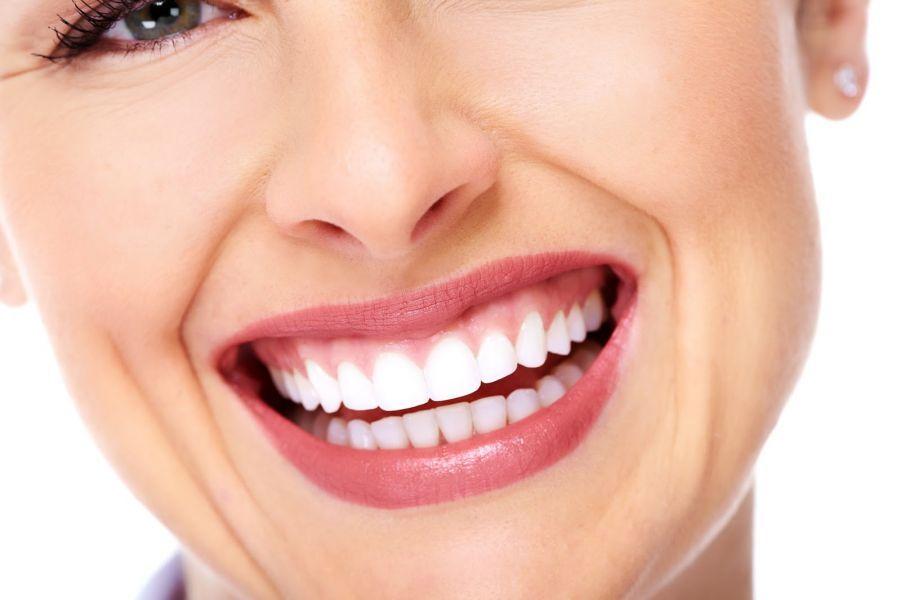4e2569641 Lentes de contato dental Saiba como o sorriso perfeito é possível (3)