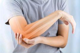 Semana de Combate à Osteoporose: o recado é especial para mulheres